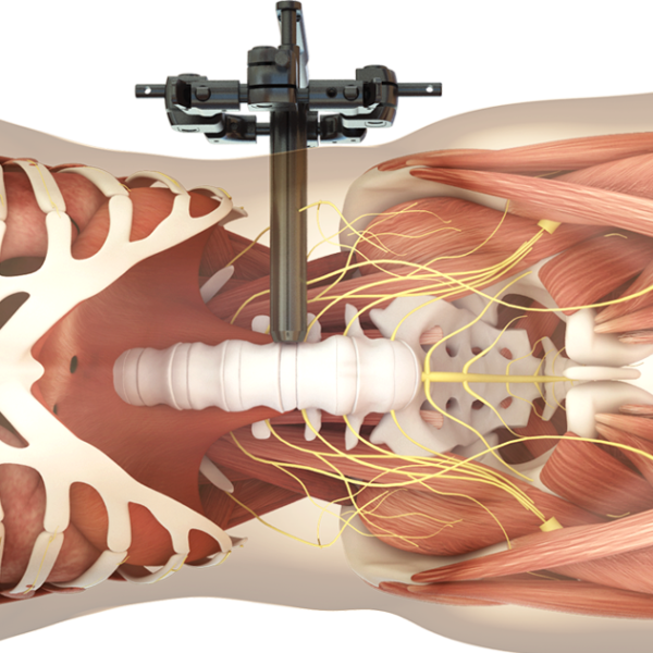 Spineart_portfolio_synthes3d_illustration_image_2